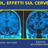 Risonanza magnetica encefalo che mette a confronto il cervello sano con quello di un bevitore accanito.